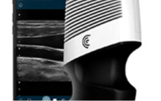 Clarius Takes Ultrasounds Further